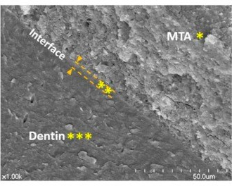 elctronc micrograph of MTA and dentin