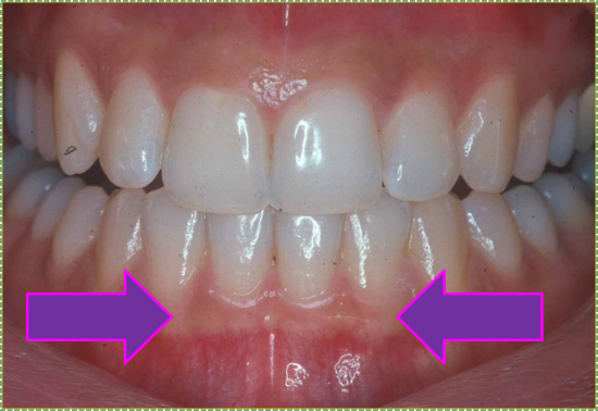 photo of attached gingiva