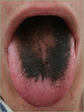 photo of black hairy tongue