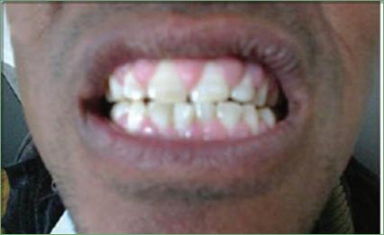 photo of gingival hyperplasia