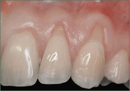 photo of gingival recession