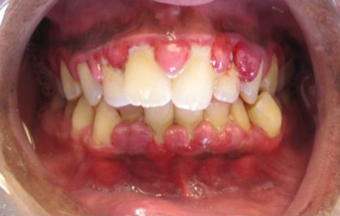 photo of gingivitis