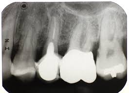 Image result for periodontitis xray