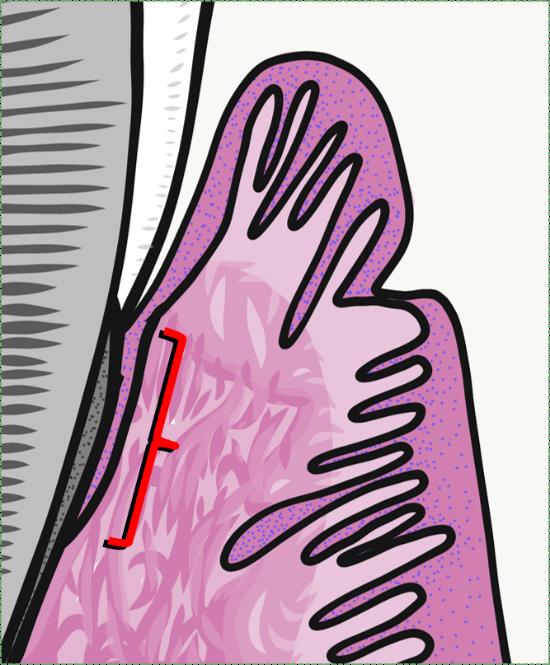 illustration of junctional epithelium
