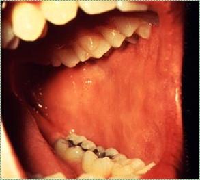 photo of buccal mucosa