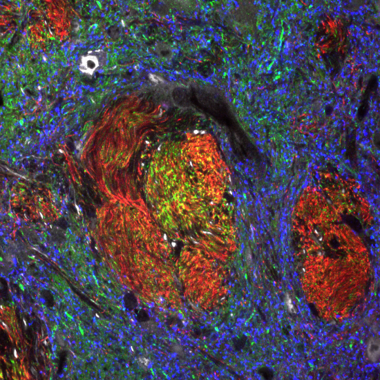 confocal image of neural tissue