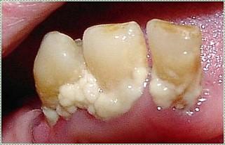 photo of dental pellicle