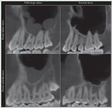 radiograph of sinuses inflamed