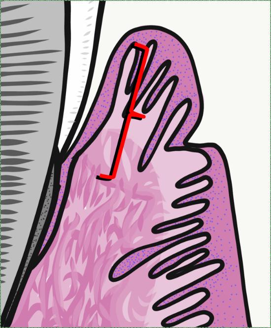 illustration of sulcular epithelium