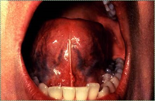 photo of ventral surface of the tongue