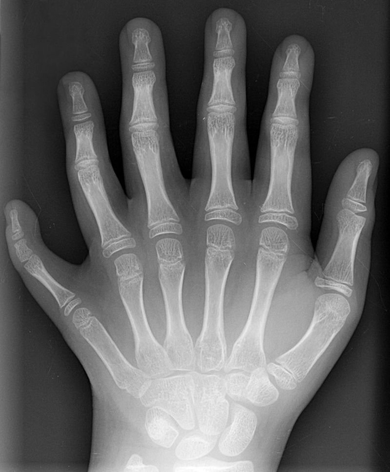 radiograph of a hand with polydactyly