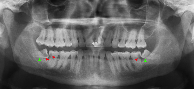 radiograph of caries