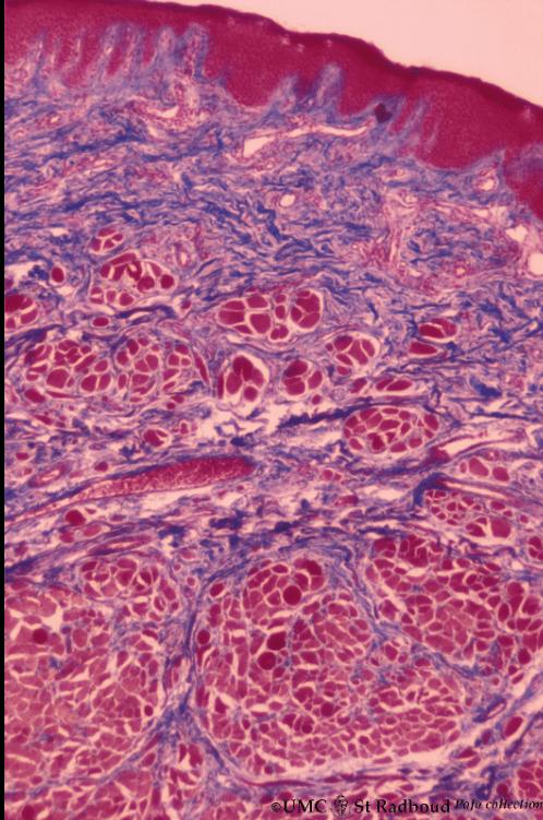 histology of labial mucosa