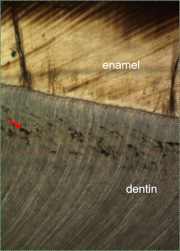 histology of DEJ