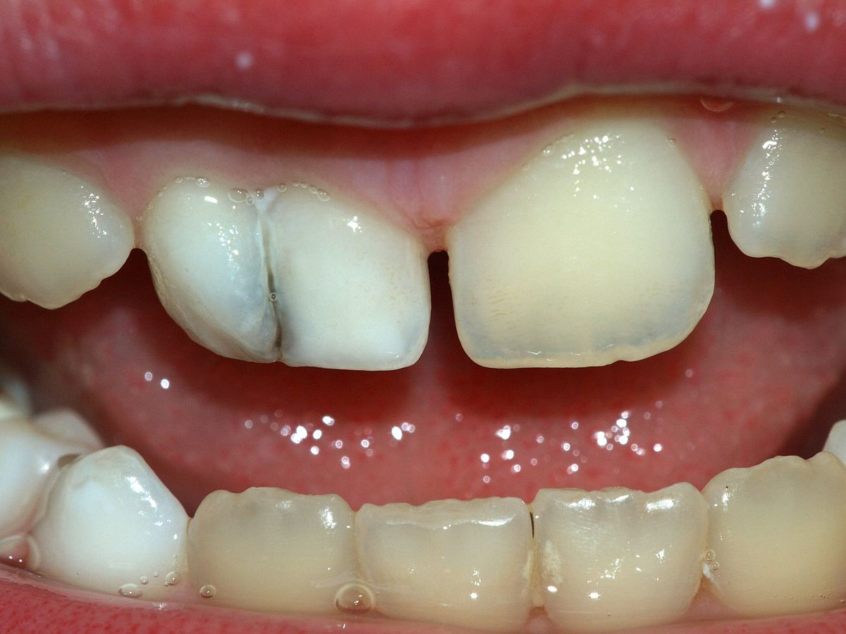 photo of tooth fusion