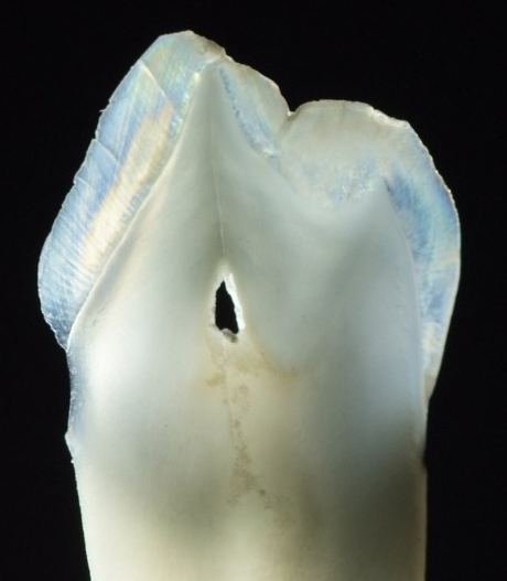 photo of a thin slice of tooth