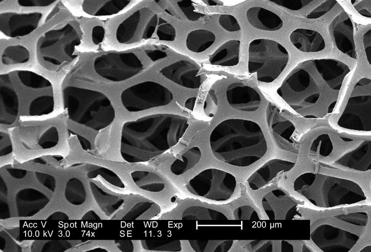 electrn micrgraph of acid etched enamel