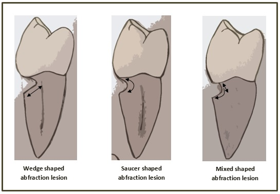 illustration of abfraction