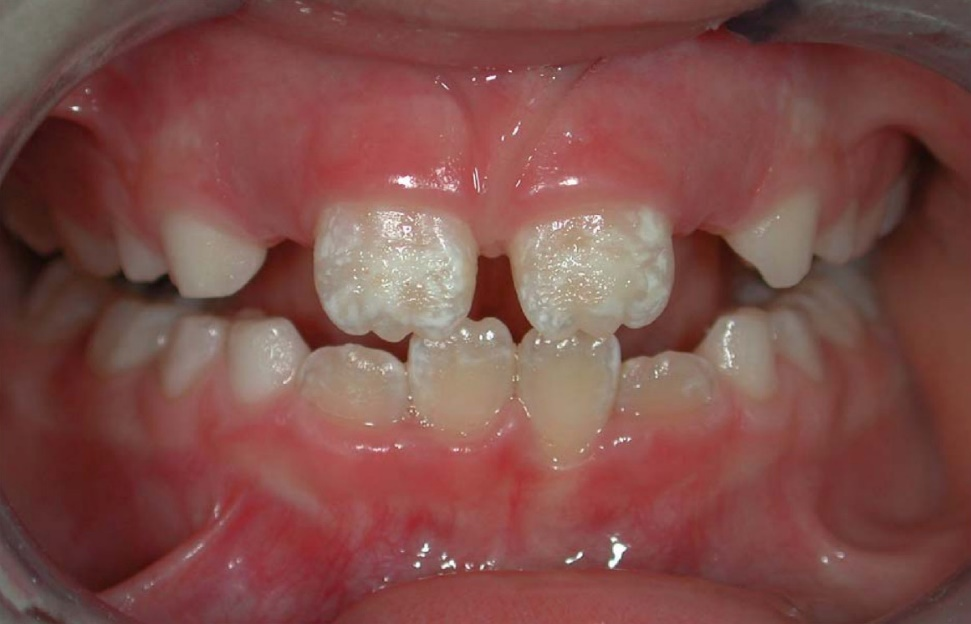 photo of a mouth with enamel hypoplasia