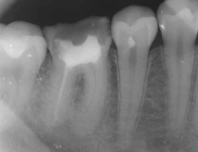 radiograph of endodontic therapy