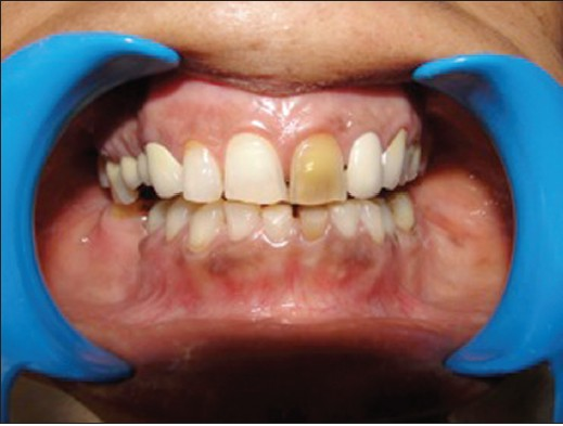 Photo of a non-vital tooth