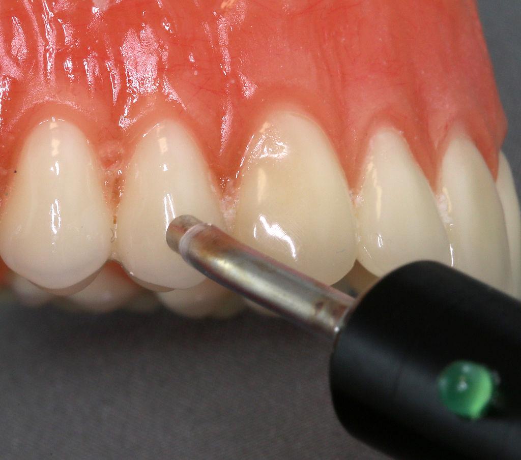 photo of pulp vitality testing