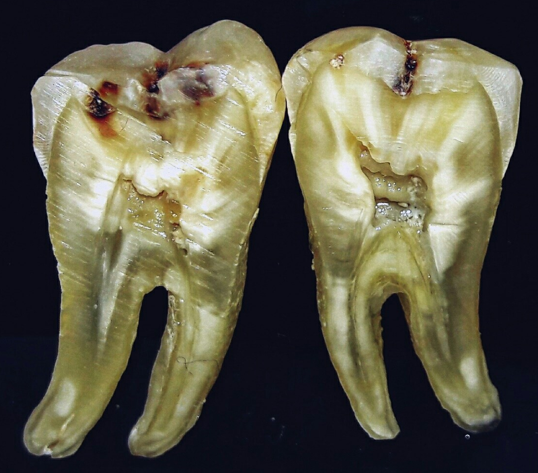 photo of a tooth cross section