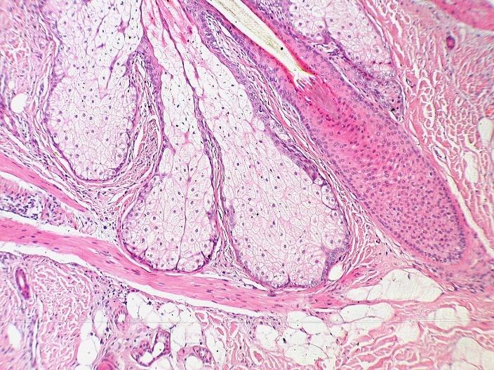 histology of a sebaceous gland