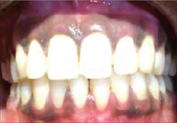photo of pigmented gingiva