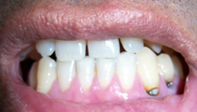 photo of cemental caries
