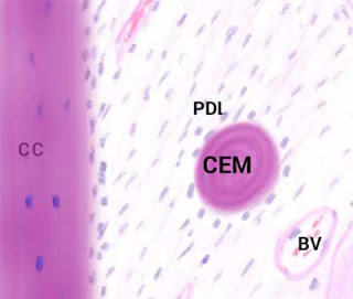 histology of a cementicle