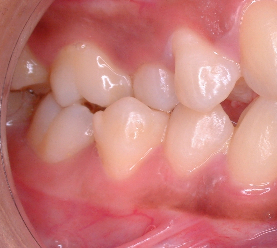 photo of mesial drift