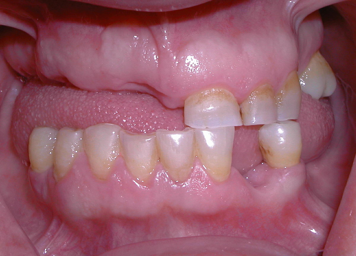 photo of an edentulous mouth